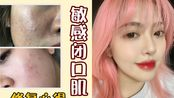 【应对烂脸】两个方法+一套护肤品,有效拯救闭口瑕疵皮?