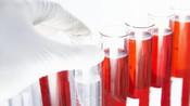 做血常规能发现体内有癌吗?医生提示:如果是这种癌症就能