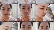 【杨杨】油痘必看|七年抗痘历程|不用药物稳定肌肤温和祛痘