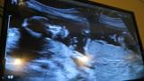 胎儿入盆后,这3件事要多做,预产期会如约而至