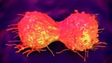 """癌症是""""拖""""出来的,远离癌症,4个部位最好每年体检一次"""