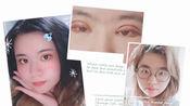 【记录】眼综合(下):全切双眼皮+抽脂去皮+内外眼角+提肌+下眼睑下至(术后半年全记录)