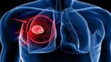 """肺癌早期没感觉?当身体出现这""""4个迹象"""",说明肺部有癌细胞了"""