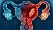 宫颈癌早期症状除了月经量少,还会出现3个异常