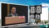 《脑变性疾病影像学诊断》——张高峰教授