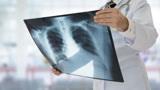 肺结节不重视变晚期肺癌?怎么做才能阻止它继续生长?