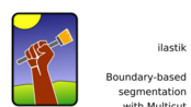 ilastik 1.3.3 | Boundary-based segmentation with Multicut