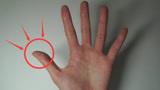 """肝癌早期不痛不痒,一旦手指出现""""4个异常"""",说明体内有癌细胞了"""