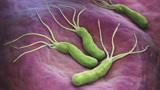 幽门螺杆菌是拖出来的,提醒:每天坚持做三件事,胃会更好