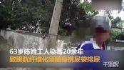 【台湾】63老人染毒20年膀胱纤维化 靠尿袋排尿还要吸毒