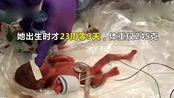 女婴23周早产成世界上最小存活婴儿,出生时只有一个苹果大小