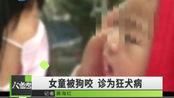 西安1岁女童被狗咬伤,诊断为狂犬病,狗主人:栓绳它不走!