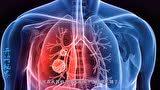 不痛不痒查出肺癌?身体出现以下3个变化,可能肺癌的早期症状