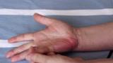 不论男女,只要身体出现这4个异常,可能是肝癌的前兆