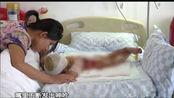 清远:一岁女童掉进热水盆 全身烫伤面积超40%盼救助