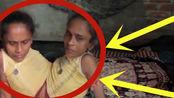 印度连体姐妹成年出嫁,嫁给同一名男子后,婚后的生活很是无奈