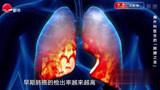 CT,胸片有什么区别?哪个检查对肺癌筛查有利?看完你就明白了!