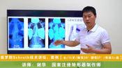 国家注册矫形器制作师谢华: 案例【女/15岁/胸弯30°腰弯37°/骨龄3+级】