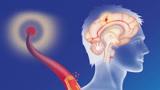 42岁男子脑出血离世,提醒:高血压患者,睡前2个习惯建议改正