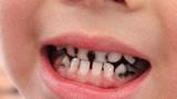 """3岁儿子满嘴""""黑牙"""",医生诊断与吃糖无关,和父母的这习惯有关"""
