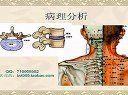 中医中药外敷治疗颈椎病 膏药|傅氏膏药招商 http:www.tengtongtie.com