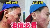 【油痘皮干货】油痘敏感肌过来看|保湿控油修复都不误|补水、保湿错误认知|26年经验