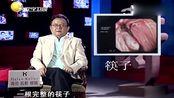 男子吐血吐了6年,医生检查后吓得头皮发麻,肺部竟插着一根筷子!