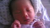 """开眼!男婴出生4天,竟又""""生""""出一个完整胎儿,妈妈吓坏了!"""