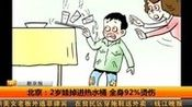 北京:2岁娃掉进热水桶 全身9270eb伤