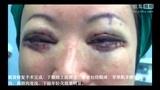双眼皮修复+眼袋修复案例(北京来美安)