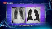 肺癌早期筛查,就做这项检查,比肿瘤标记物更准确!