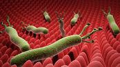幽门螺旋杆菌不消灭,很快就会招来胃癌!常吃2样食物,胃癌绕道走!