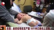 美国:麻疹疫情愈发严重 10个州已确诊上百例