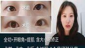 超详细3个月双眼皮经验分享 全切+开眼角+上睑下垂(提肌)矫正大小眼 改善眼睛无神