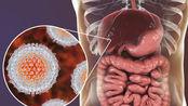 肝癌都是被拖出来?医生提醒:身体若出现这3种症状,尽早就医