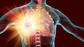 """为什么肺癌发现都晚期了?身体3处疼痛情重视,或是肺在""""求救"""""""