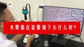 水霉菌在显微镜下是什么样子的?