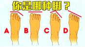 依据脚趾长度,可分辨埃及脚、罗马脚和希腊脚,知道你是哪种吗?