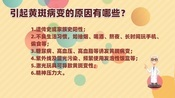 """【专业课件制作】黄斑是眼科""""癌症""""?听听专家怎么说"""