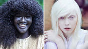 全世界最白和最黑的人!全球最具特色的5位模特大咖!